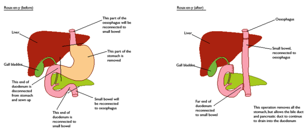 Gastrectomy-Before-and-After